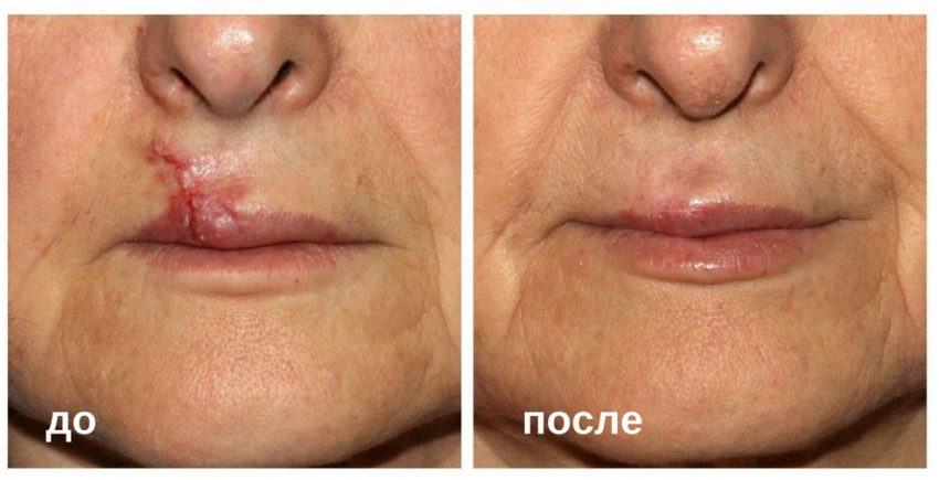 What you can use: how to remove the scar on the lip and face